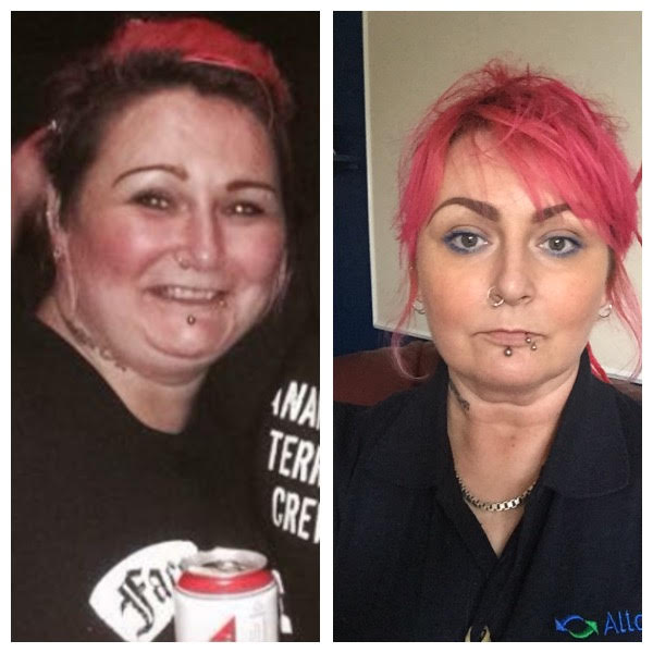 Hypothyroid In Photos Before And After Stop The Thyroid Madness