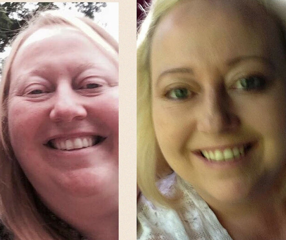 Before After Sharon Cuthbert of the UK