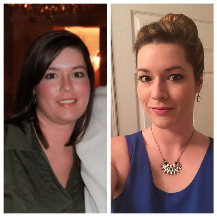 Hypothyroid In Photos Before And After Stop The Thyroid