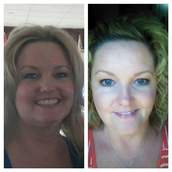 Image Gallery hypothyroidism and puffy eyes