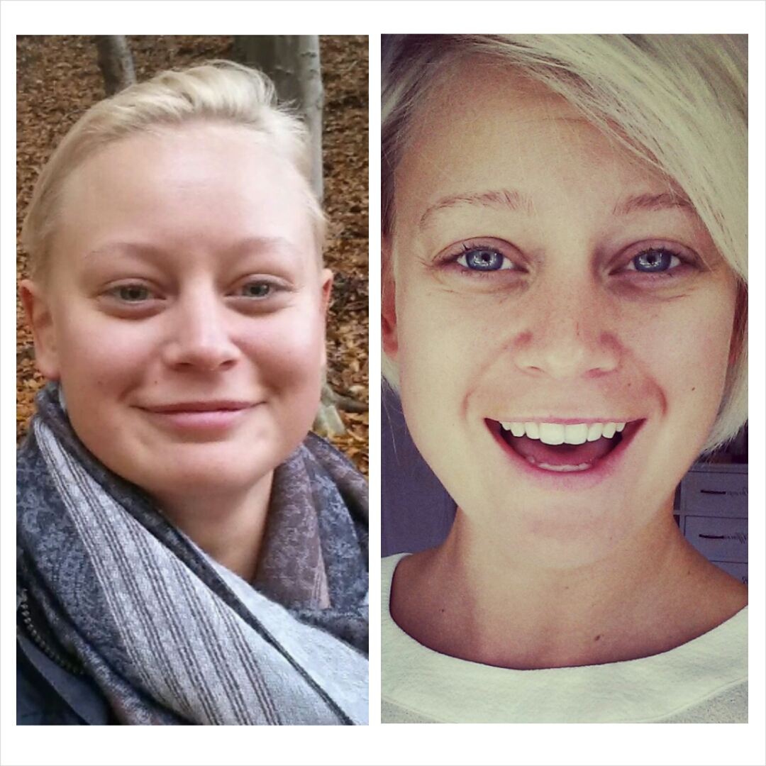 skin rashes & hypothyroidism - Symptoms, Treatments and ...