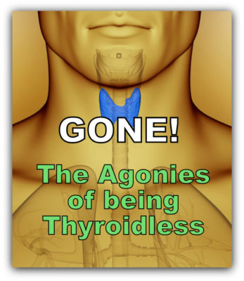 agonies being thyroidless and man with thyroid highlighted in blue color